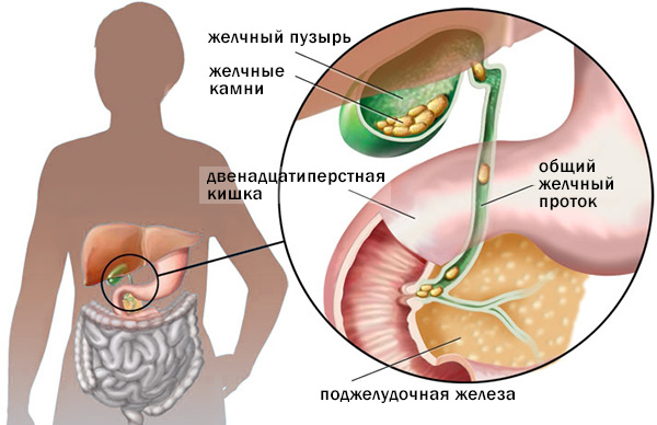 Боль в правом подреберье сбоку: причины болей, лечение