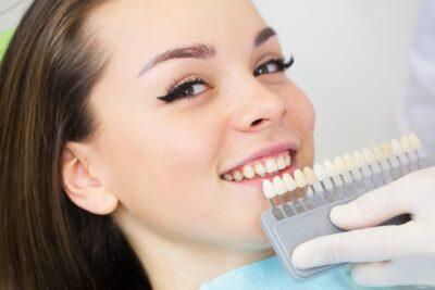 Разновидности отбеливания зубов в Харькове