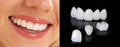Цирконий или металлокерамика: что выбрать при реставрации зубов