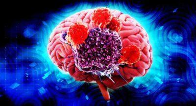 Причины, симптомы и лечение рака головного мозга