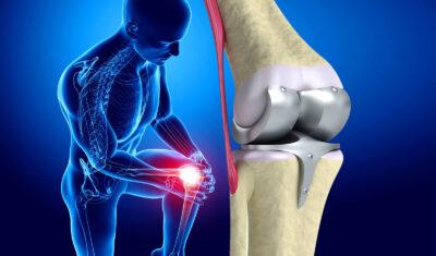 Показания к эндопротезированию коленного сустава