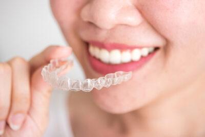 Выравнивание зубов элайнерами