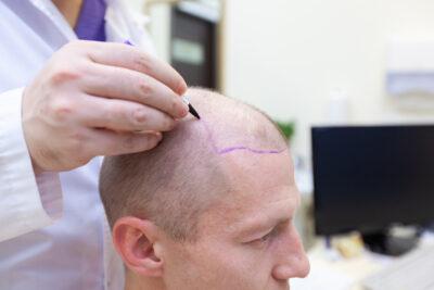 Пересадка волос методом HFE